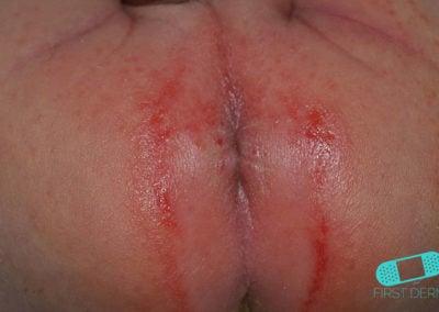 Blöjeksem är klarröda, irriterade fläckar spädbarns skinkor