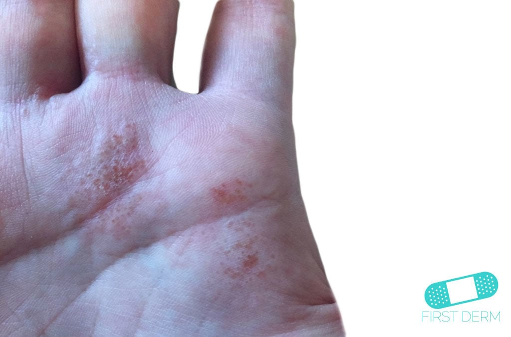 Dyshidrotic eczema (dyshidrosis)
