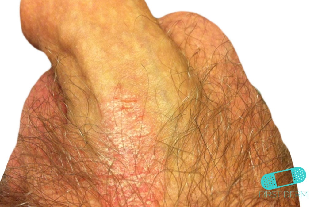 rash on genital