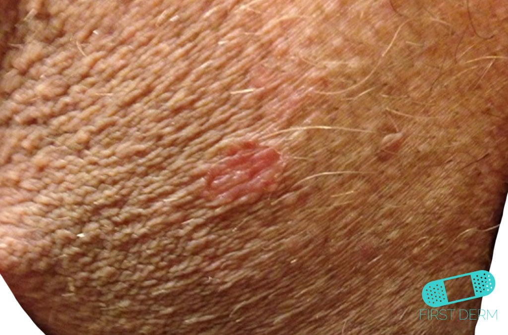La psoriasis las revocaciones rostov