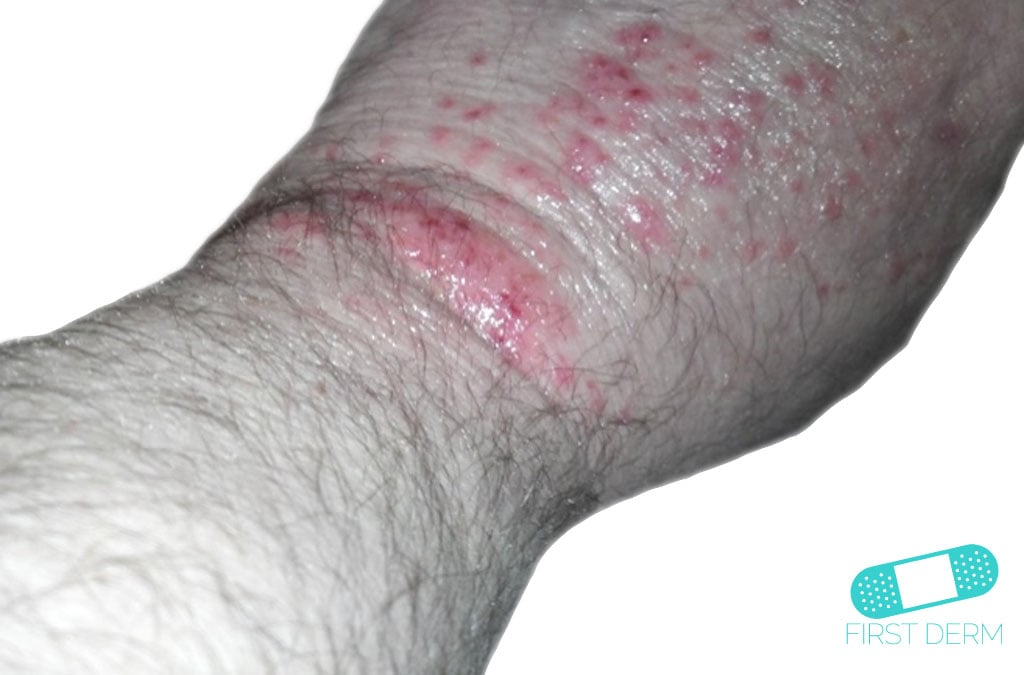 First Derm Herpes Zoster Shingles (2) ICD-10-B02