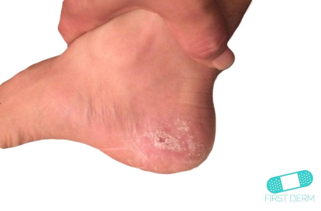 bump under huden på penis