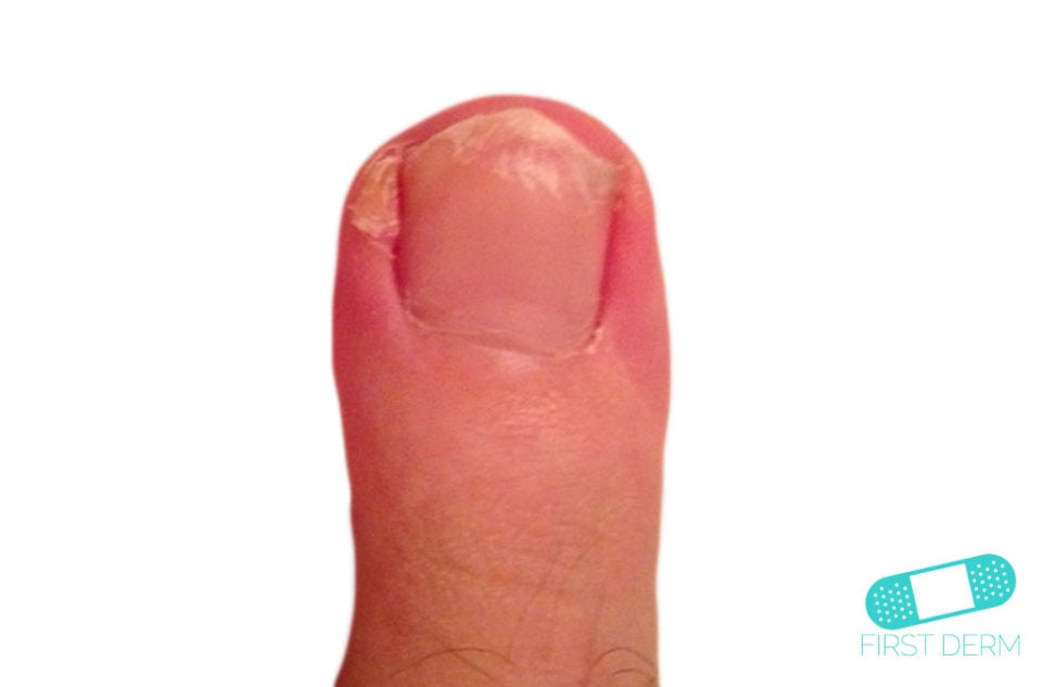 Hyperkeratosis finger (2) ICD-10-A66.3