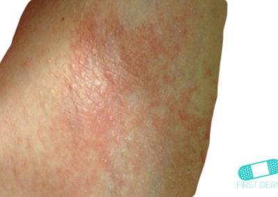 Irritative eczema leg (1) ICD-10-L24.9
