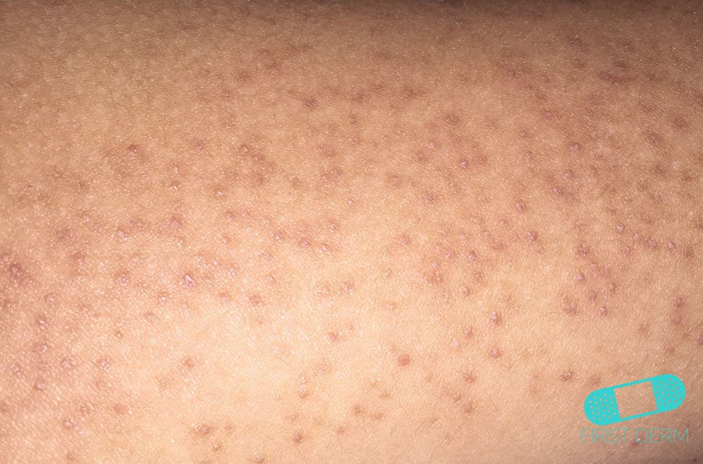 online dermatology how to treat the red bumps on your arms