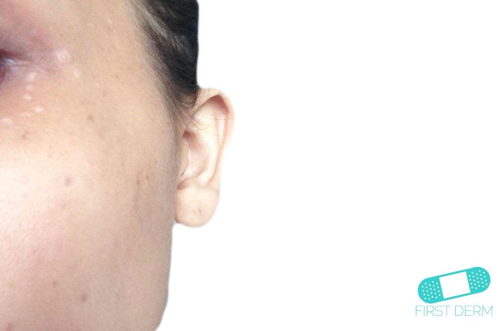 La máscara con la aspirina de cerrado komedonov