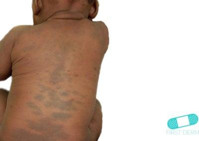 Manchas mongólicas (03) espalda bebé [ICD-10 Q82.8]