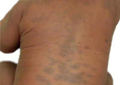 Mongolfläckar rygg 2 [ICD-10 Q82.8]