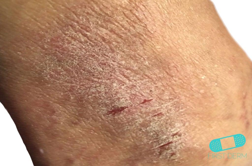 Dermatite di atopic della persona
