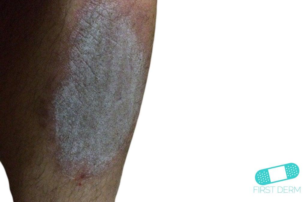 Terapie di unguento di eczema
