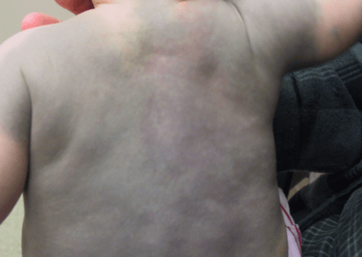 Mongolian spots (1) back