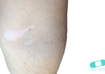 Vitiligo leg (10) ICD-10-L80