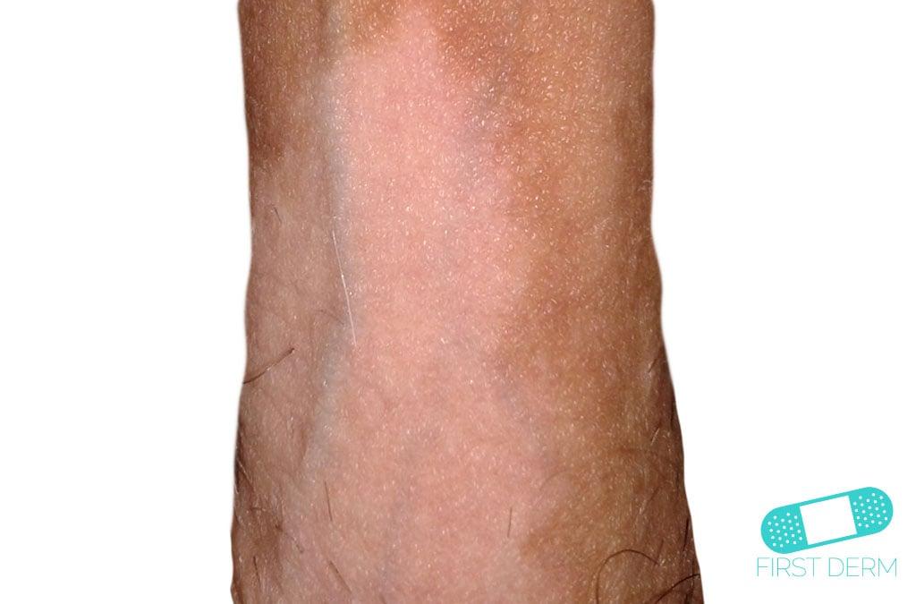 Små vita fläckar på huden