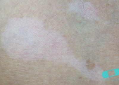 Vitiligo neck (5) ICD-10-L80