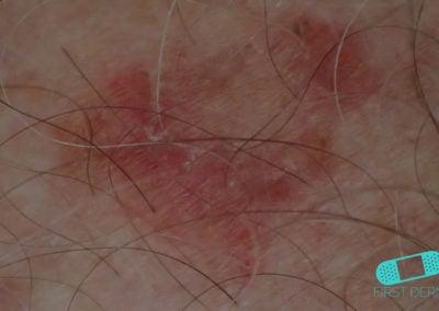 Solskadad hud Bowens sjukdom huvud ICD 10 D04