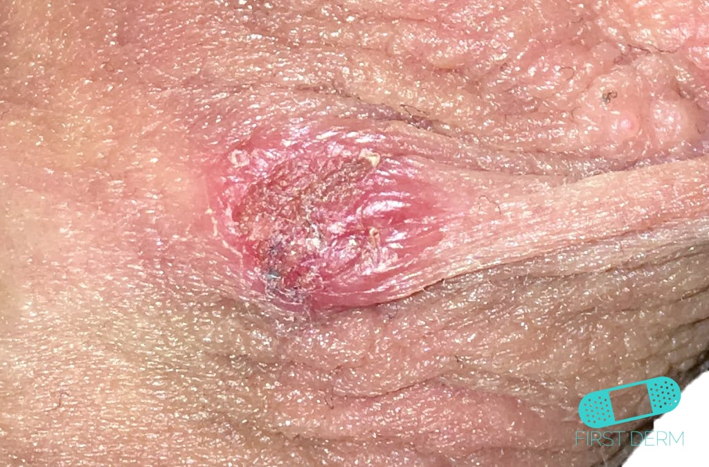 First Derm Genital Herpes (2) ICD-10-A60.00