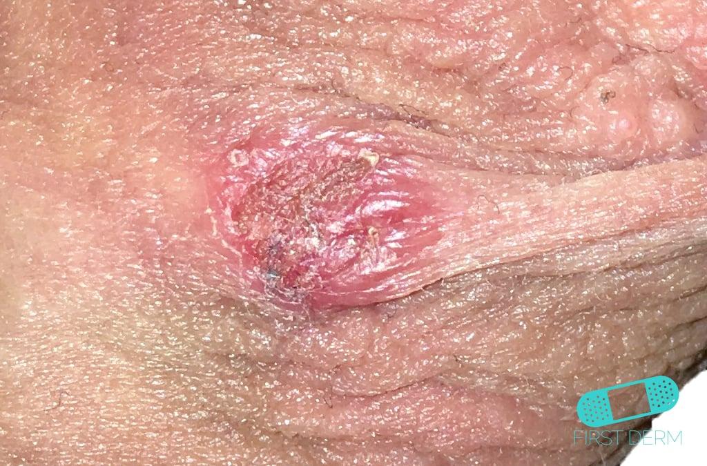 genital herpes 10