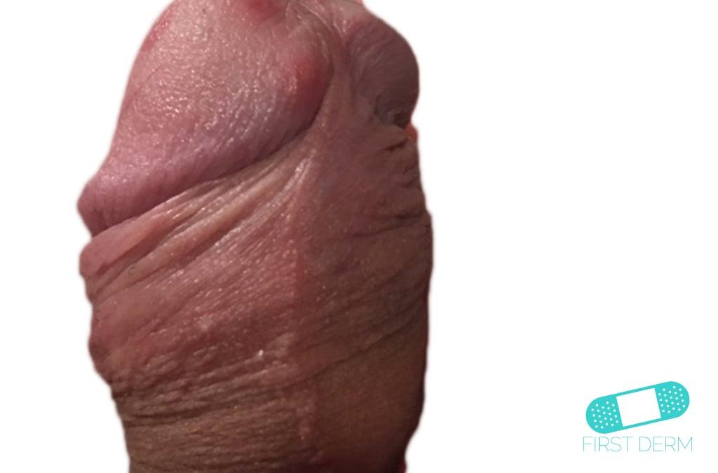 herpes virus on anus