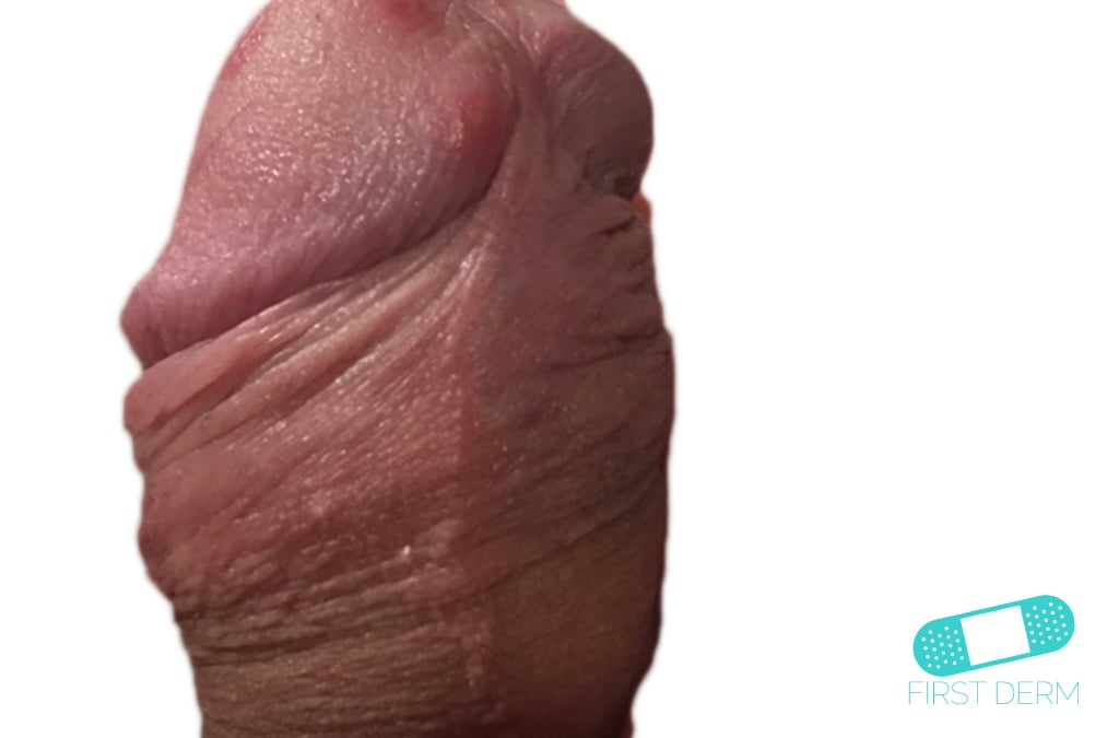 First Derm Genital Herpes (6) ICD-10-A60.00