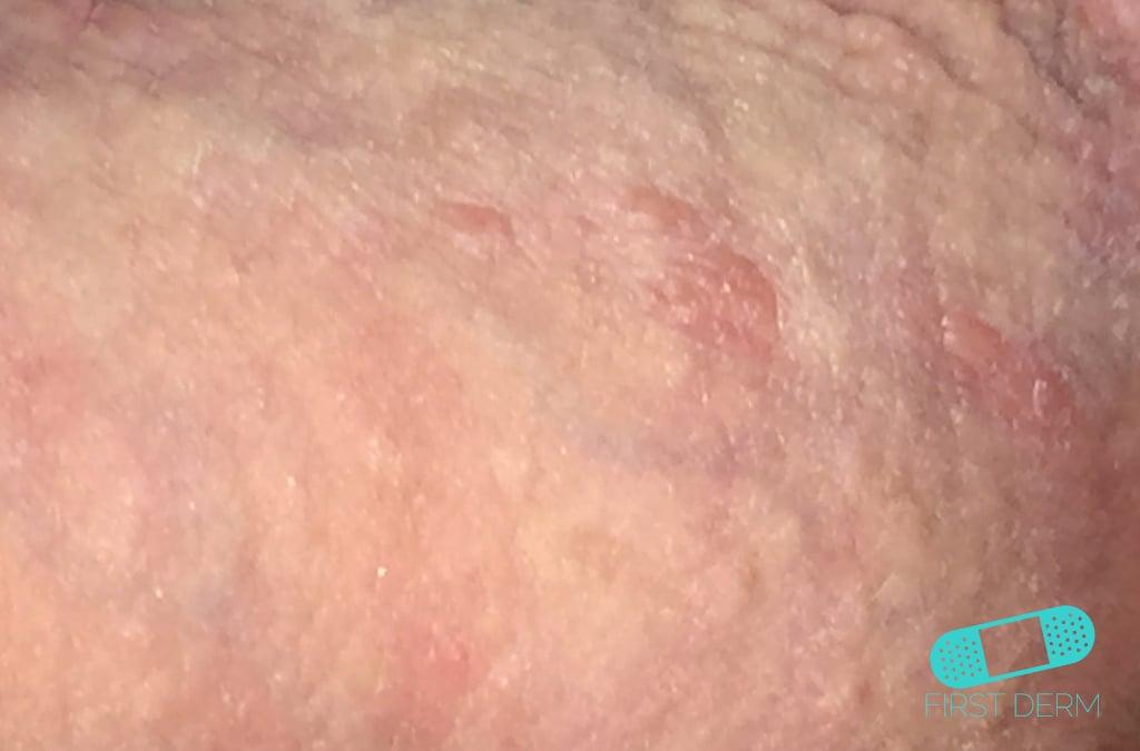 First Derm Genital Herpes (14) ICD-10-A60.00