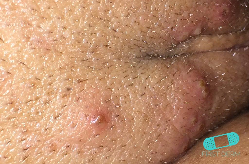 First Derm Genital Herpes (17) ICD-10-A60.00