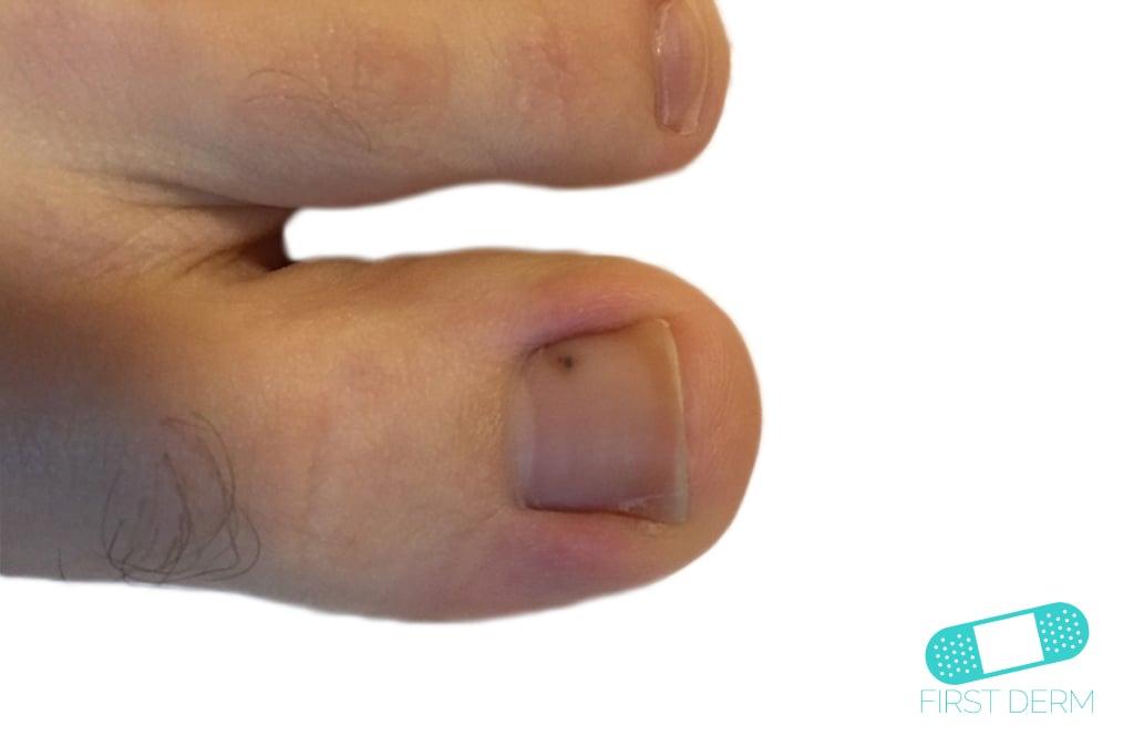 Melanoma big toe (7) ICD-10-C43.9