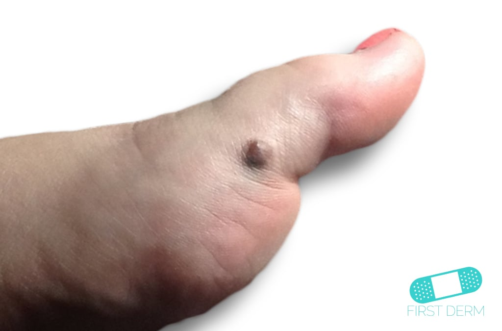 Melanoma foot (3) ICD-10-C43.9