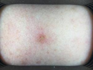 blog sunscreen