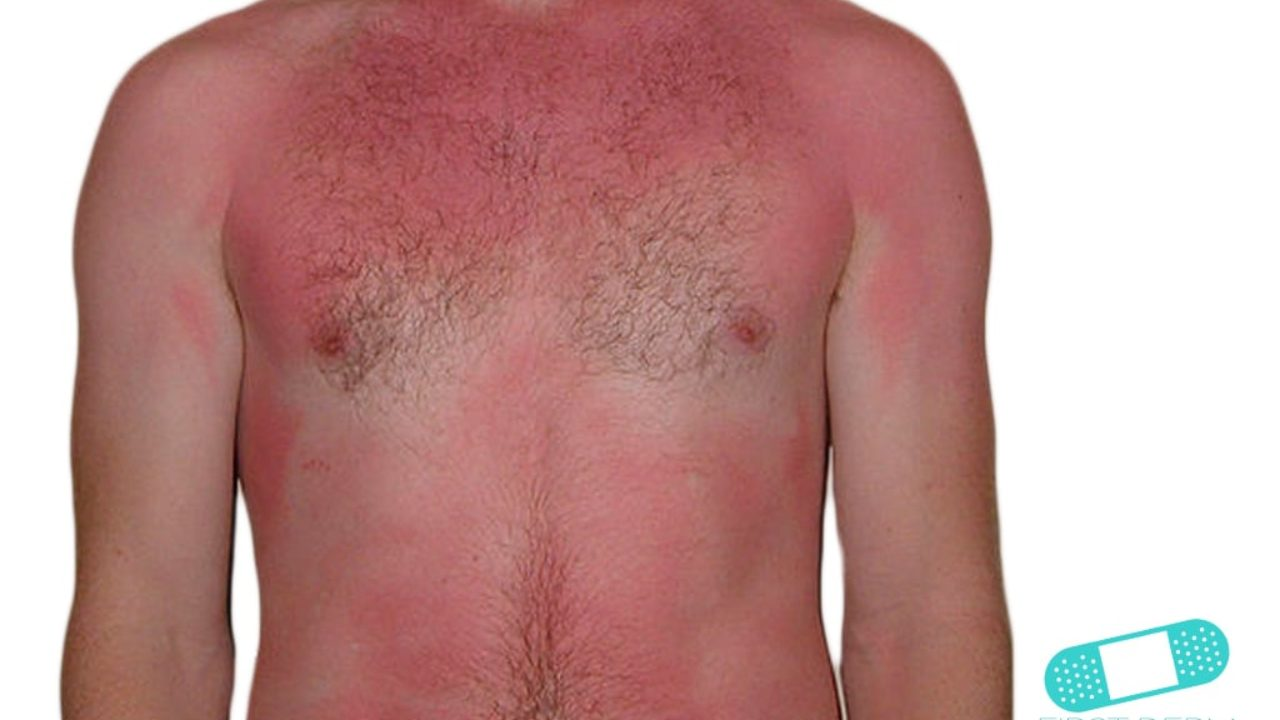 eczema por el sol