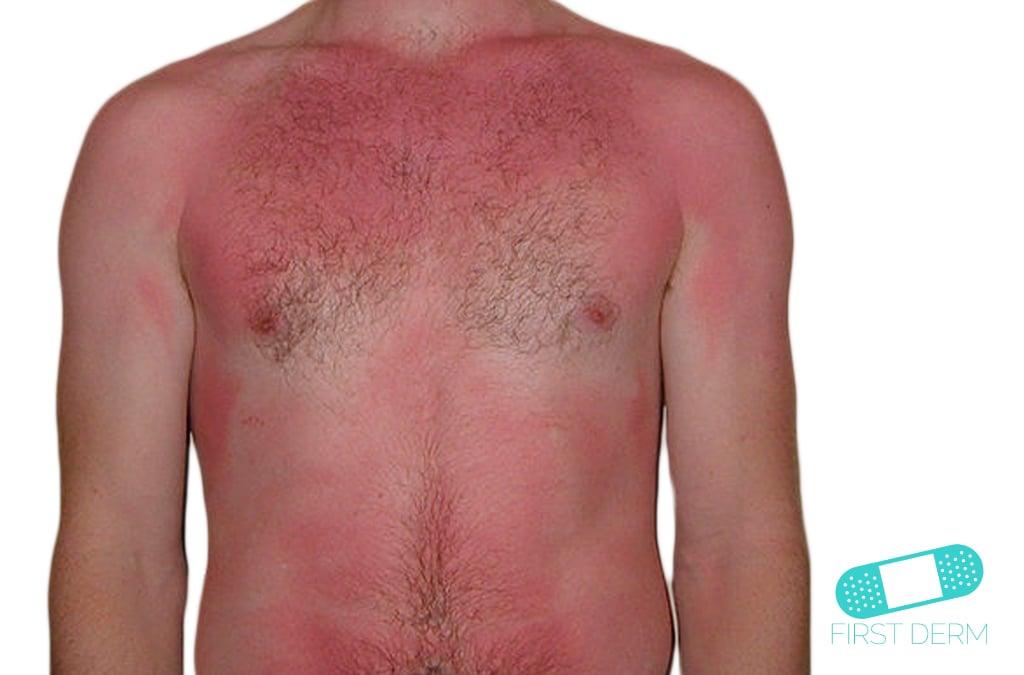 hur länge är man röd efter solbränna