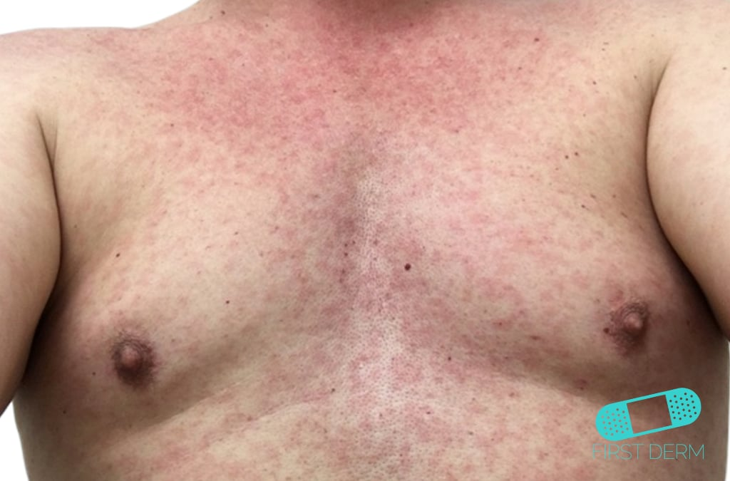 zika virus rash photos