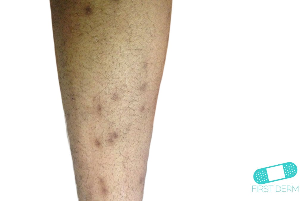 Common Hyperpigmentation Disorders in Adults: Part I ...