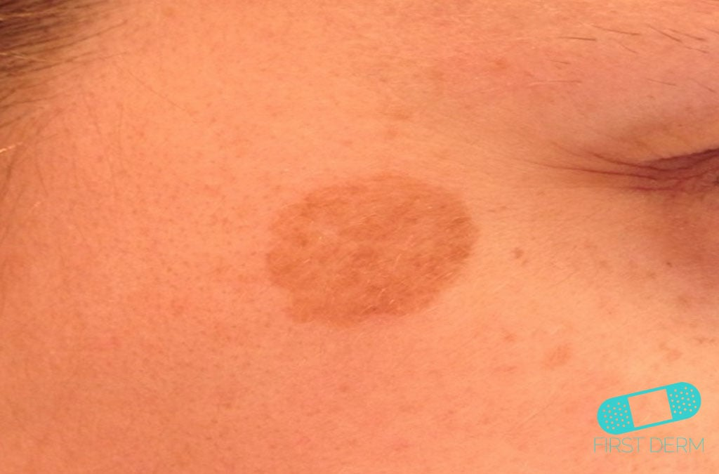 Skin - abnormally dark or light: MedlinePlus Medical ...