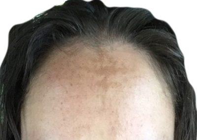Hyperpigmentation Melasma fore head