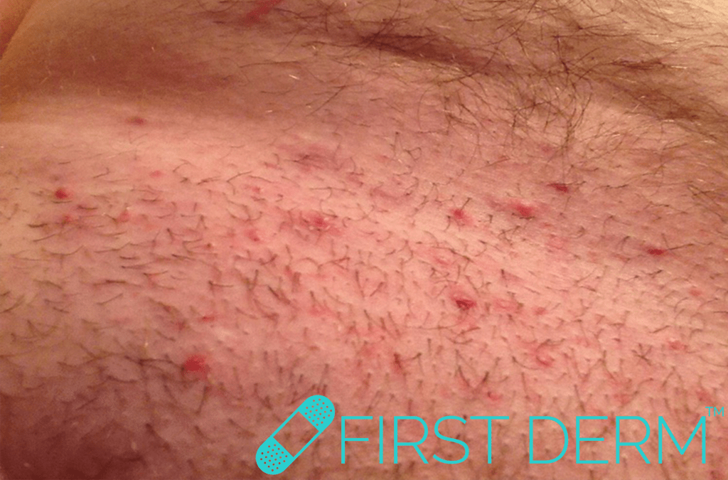 Sex rash Folliculitis Ingrown hair groin ICD 10 L73.9