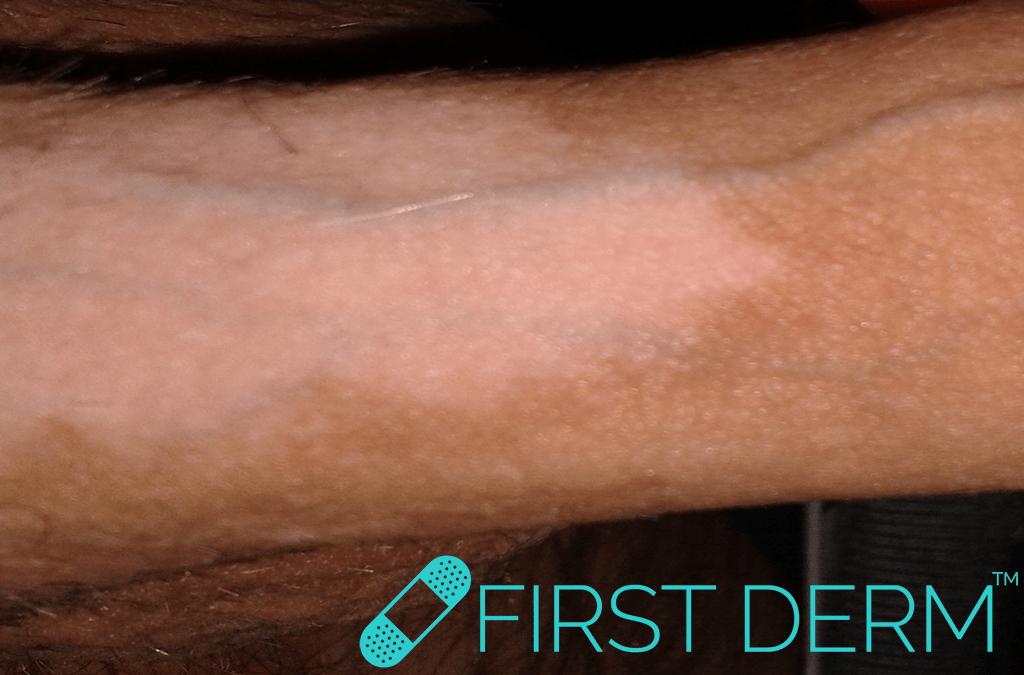 erupción oscura en la piel