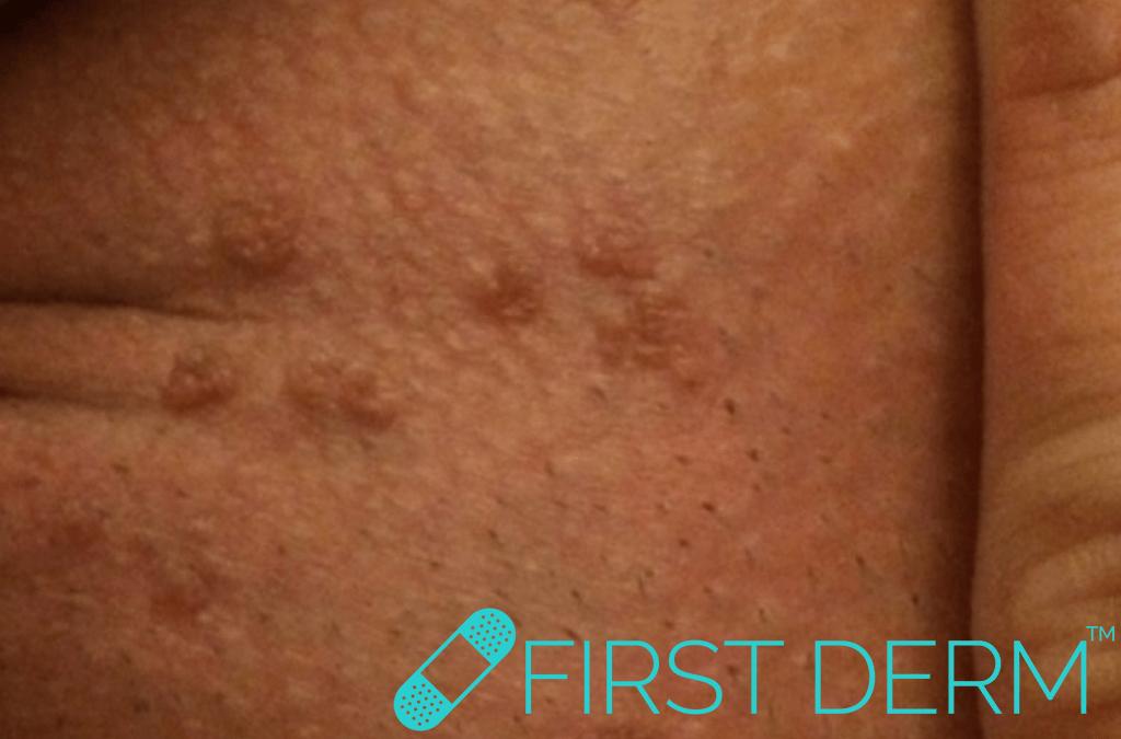 First Derm partner cheating Papillomavirus (HPV) Genital Warts Condyloma ICD 10 A63.0