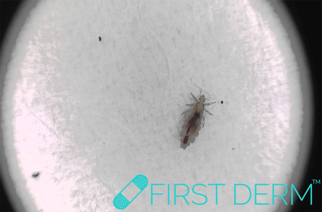 First Derm partner cheating Pubic Lice Pediculosis ICD 10 B85.0