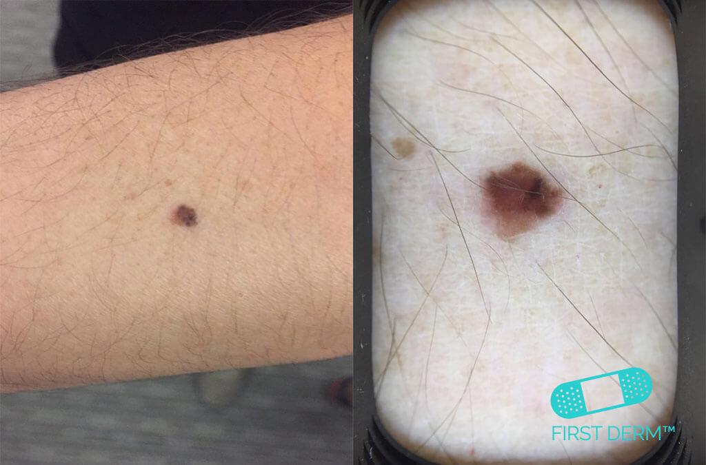 Føflekkreft!Hvordan du kan oppdage den tidlig melanom