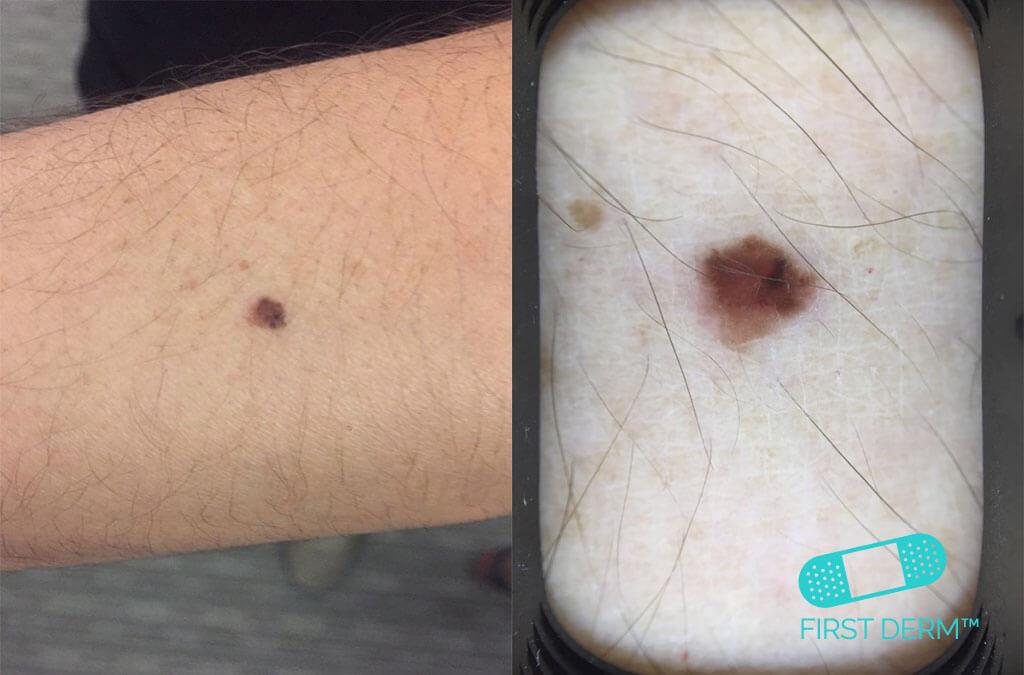 Ricardo Ibarra Malignant Melanoma smartphone dermoscopy arm ICD 10 C43.9