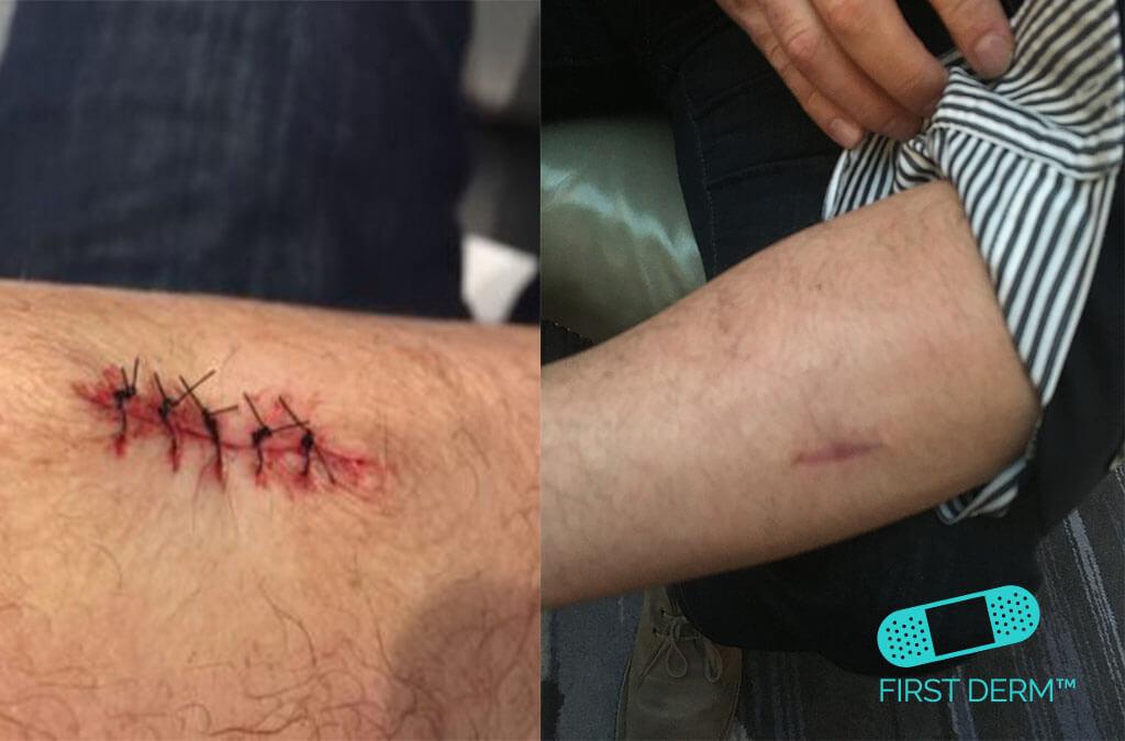 malignant-melanoma-surgery-scar