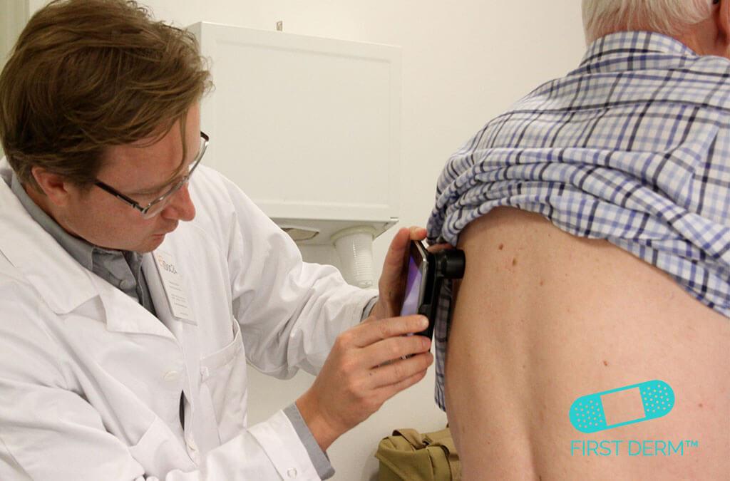 Spotcancer prick-koll-mottagning hudcancer malignt melanom alexander börve
