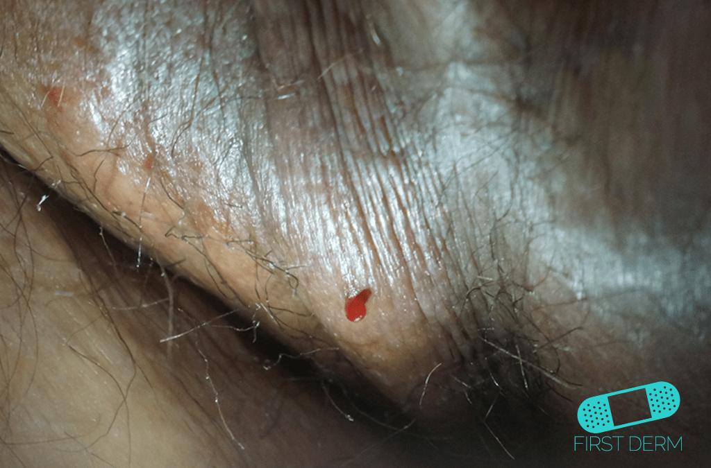 Semester Hudutslag utomlands testikel Pyogenic Granulom ICD-10-L98.0