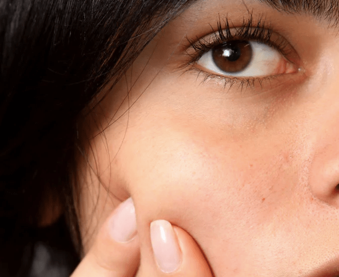 Sommar hudvård Post-inflammatorisk Erytem - kemisk peeling