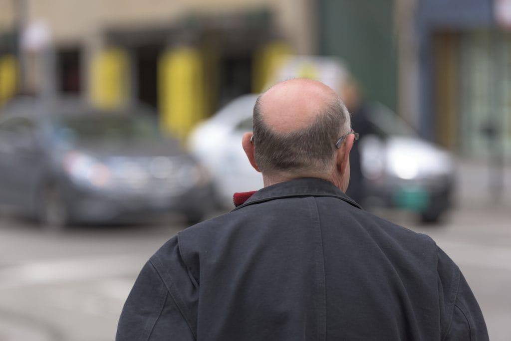 håravfall skallighet