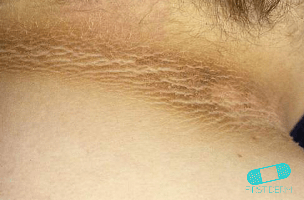 Black Skin Conditions and their treatment Acanthosis Nigricans ICD-10-L83