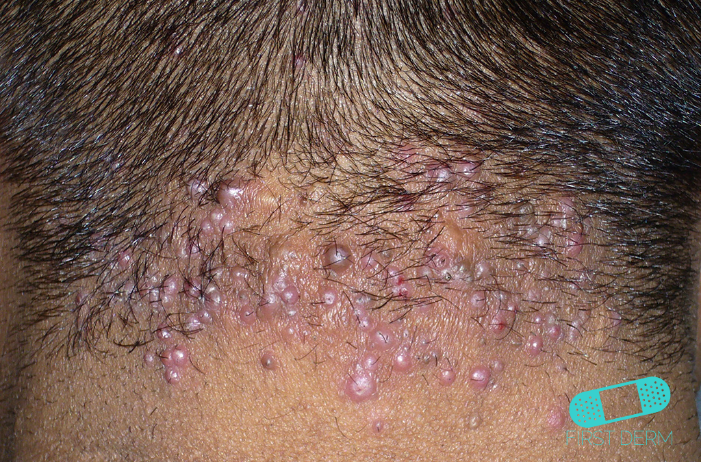 Black Skin Conditions and their treatment Acne Keloidalis Nuchae ICD-10-73.0