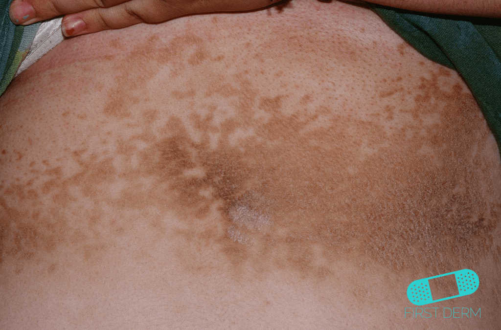 Black Skin Conditions and their treatment Confluent of Reticulated Papillomatosis Gougerot-Carteaud Syndrome ICD-10-L66.4