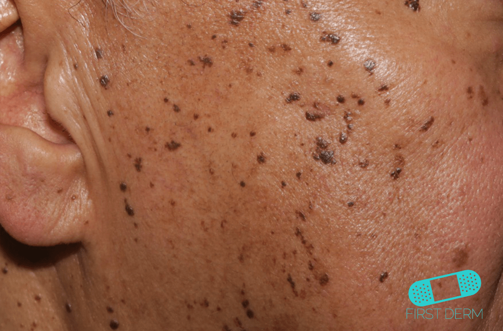 Black Skin Conditions and their treatment Dermatosis Papulosa Nigra ICD-10-L81.7