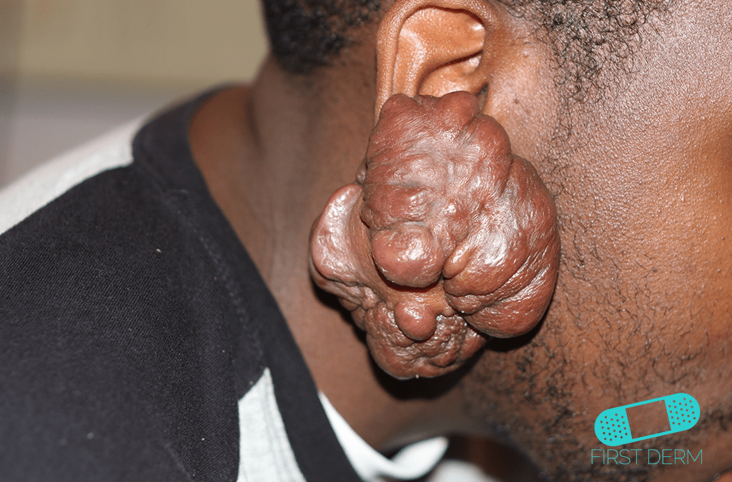 Black Skin Conditions and their treatment ear Keloid ICD-10-L73